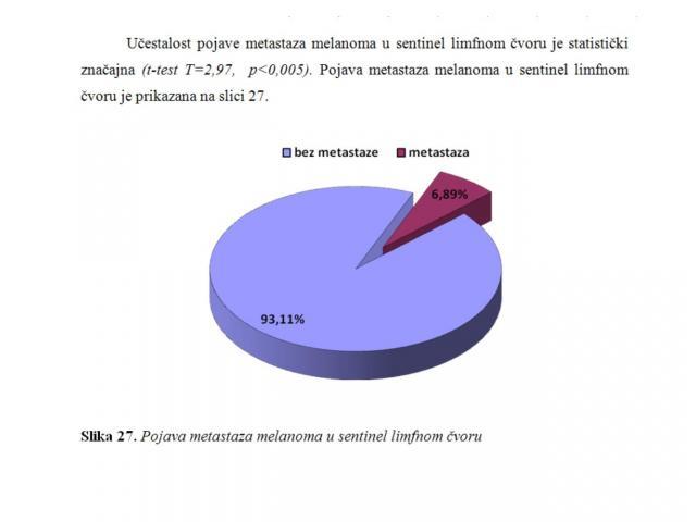 SPSS - statistička obrada podataka - 2/8